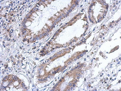 Immunohistochemistry (Formalin/PFA-fixed paraffin-embedded sections) - PLA2G4F antibody (ab111551)