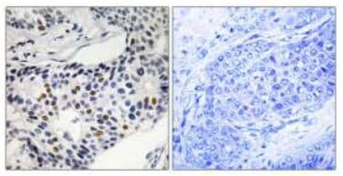 Immunohistochemistry (Formalin/PFA-fixed paraffin-embedded sections) - Wee1 (phospho S53) antibody (ab111820)