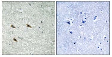 Immunohistochemistry (Formalin/PFA-fixed paraffin-embedded sections) - Raf1 (phospho S289) antibody (ab111829)