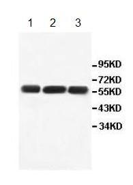 Western blot - ALDH1B1 antibody (ab112531)
