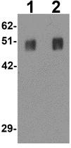 Western blot - Anti-SPRYD5 antibody (ab113101)