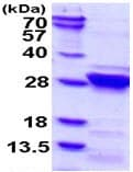 SDS-PAGE - RGS4 protein (ab113136)