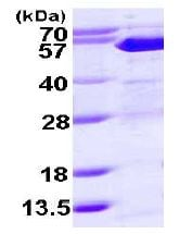 SDS-PAGE - Suppressor of Fused protein (His tag) (ab113584)