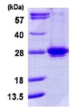 SDS-PAGE - RAB35 protein (ab113586)