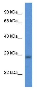 Western blot - TMEM33 antibody (ab113779)