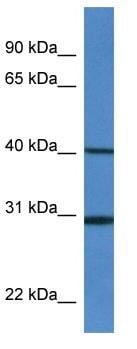 Western blot - Signal Peptide Peptidase antibody (ab113872)
