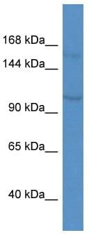 Western blot - Anti-KCNQ3 antibody (ab113948)