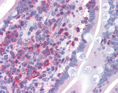 Immunohistochemistry (Formalin/PFA-fixed paraffin-embedded sections) - Anti-FBP17 antibody (ab113961)