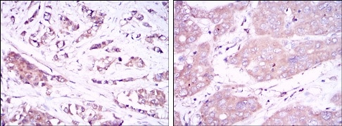 Immunohistochemistry (Formalin/PFA-fixed paraffin-embedded sections) - Anti-Beclin 1 antibody [2A4] (ab114071)