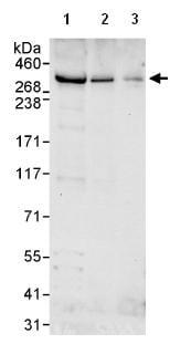 Western blot - Anti-CHD6 antibody (ab114095)