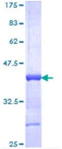 SDS-PAGE - HOXA13 protein (ab114544)