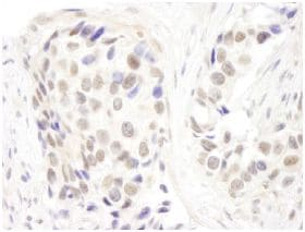 Immunohistochemistry (Formalin/PFA-fixed paraffin-embedded sections) - Anti-p66 alpha  antibody (ab114973)
