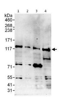 Western blot - Anti-ZKSCAN2 antibody (ab115177)