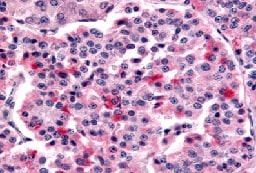 Immunohistochemistry (Formalin/PFA-fixed paraffin-embedded sections) - Anti-Frizzled 5 antibody (ab115204)