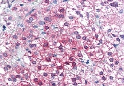 Immunohistochemistry (Formalin/PFA-fixed paraffin-embedded sections) - Anti-Axin 1 antibody (ab115205)