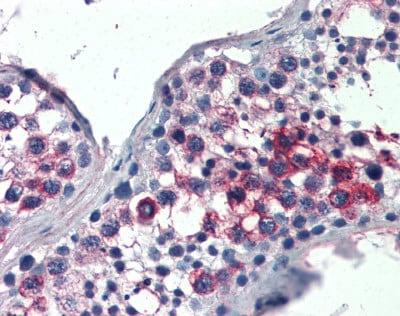 Immunohistochemistry (Formalin/PFA-fixed paraffin-embedded sections) - Anti-FHL1 antibody (ab115219)