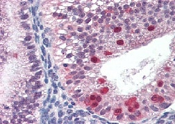 Immunohistochemistry (Formalin/PFA-fixed paraffin-embedded sections) - Anti-FANCG antibody (ab115230)