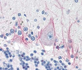 Immunohistochemistry (Formalin/PFA-fixed paraffin-embedded sections) - Anti-DNase II antibody (ab115233)