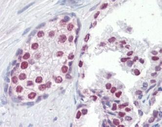 Immunohistochemistry (Formalin/PFA-fixed paraffin-embedded sections) - Anti-FOXA1 antibody (ab115279)