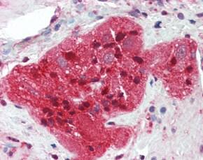 Immunohistochemistry (Formalin/PFA-fixed paraffin-embedded sections) - Anti-STMN2 antibody (ab115513)