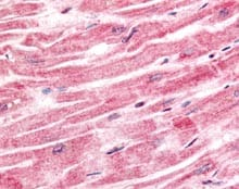 Immunohistochemistry (Formalin/PFA-fixed paraffin-embedded sections) - Anti-Sprouty 4 antibody (ab115557)