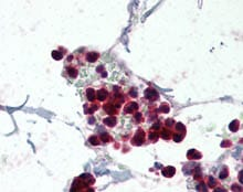 Immunohistochemistry (Formalin/PFA-fixed paraffin-embedded sections) - Anti-NCF1 antibody (ab115564)