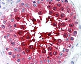 Immunohistochemistry (Formalin/PFA-fixed paraffin-embedded sections) - Anti-TPX2 antibody [18D5] (ab115628)
