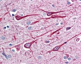 Immunohistochemistry (Formalin/PFA-fixed paraffin-embedded sections) - Anti-GRASP1 antibody (ab115630)