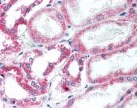 Immunohistochemistry (Formalin/PFA-fixed paraffin-embedded sections) - Anti-HSD11B2 antibody (ab115696)