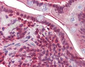 Immunohistochemistry (Formalin/PFA-fixed paraffin-embedded sections) - Anti-PPP4C antibody (ab115741)