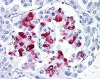 Immunohistochemistry (Formalin/PFA-fixed paraffin-embedded sections) - Anti-Amylin antibody [R10/99] (ab115766)