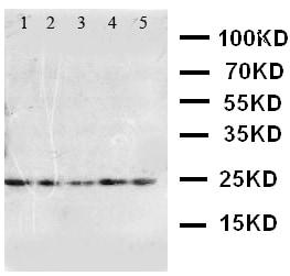 Western blot - Anti-FGF10 antibody (ab115825)