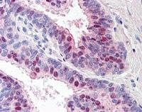 Immunohistochemistry (Formalin/PFA-fixed paraffin-embedded sections) - Anti-TARBP1 antibody (ab115896)