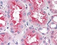 Immunohistochemistry (Formalin/PFA-fixed paraffin-embedded sections) - Anti-SMAD9 antibody (ab115900)