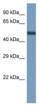 Western blot - Anti-Annexin A11 antibody (ab116053)