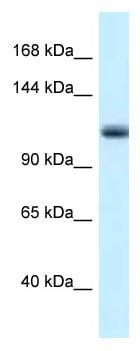 Western blot - Anti-MCM10 antibody (ab116072)