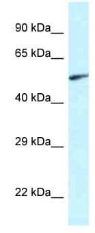 Western blot - Anti-EYA2 antibody (ab116075)
