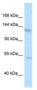 Western blot - Anti-Tau tubulin kinase 2 antibody (ab116096)