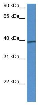 Western blot - Anti-CALHM1 antibody (ab116101)