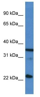 Western blot - Anti-SC35 antibody (ab116103)