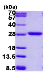 SDS-PAGE - Proteasome 20S alpha 2 protein (ab116173)