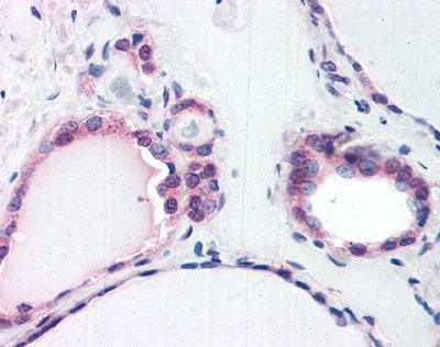Immunohistochemistry (Formalin/PFA-fixed paraffin-embedded sections) - Anti-TRIP15 antibody (ab116237)