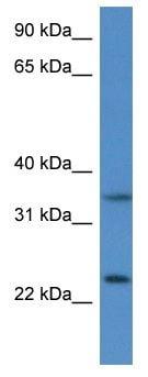 Western blot - Anti-CYB5R1 antibody (ab116276)