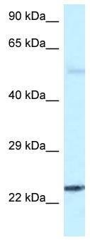 Western blot - Anti-RAB31 antibody (ab116344)