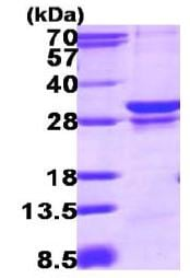 SDS-PAGE - RAB23 protein (ab117218)