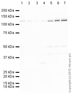 Western blot - Anti-ATP citrate lyase antibody (ab117239)