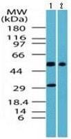 Western blot - Anti-GPCR TGR5 antibody (ab117414)