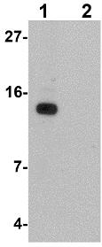 Western blot - Anti-DDA1 antibody (ab117440)