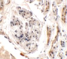 Immunohistochemistry - Anti-KIAA0701 antibody (ab117450)