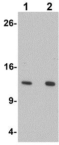 Western blot - Anti-HIGD1A antibody (ab117456)